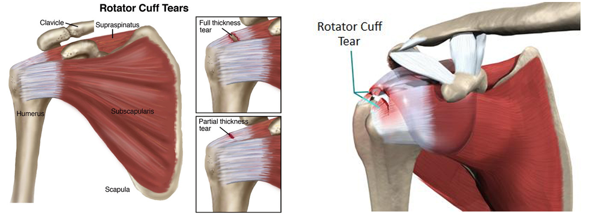 Rotator Cuff I Clay County Physical Therapy